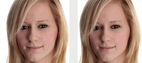 Removing-skin-blemishes-with-spot-healing-brush-photoshop-ultimate-roundup-os-retouching-tutorials